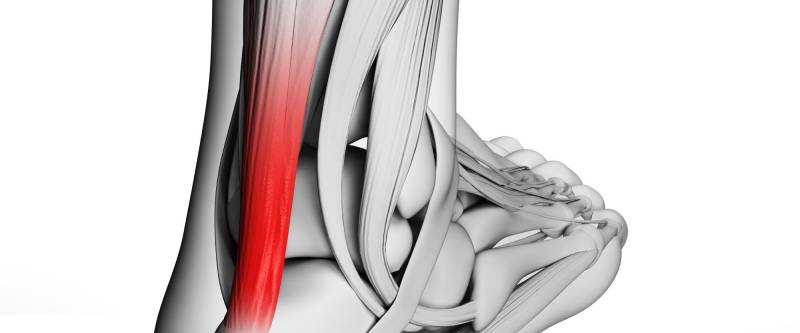 Tendinite o tendinopatia del tendine d'Achille